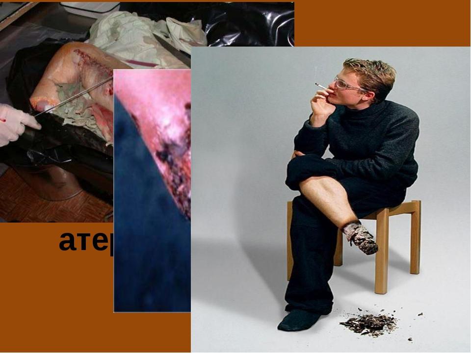 Курение способствует развитию облитерирующего атеросклероза нижних конечностей.