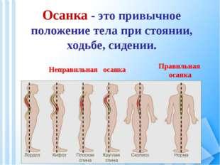 Осанка - это привычное положение тела при стоянии, ходьбе, сидении. Правильна