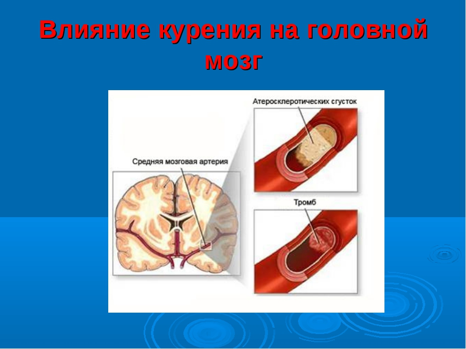 Влияние курения на головной мозг