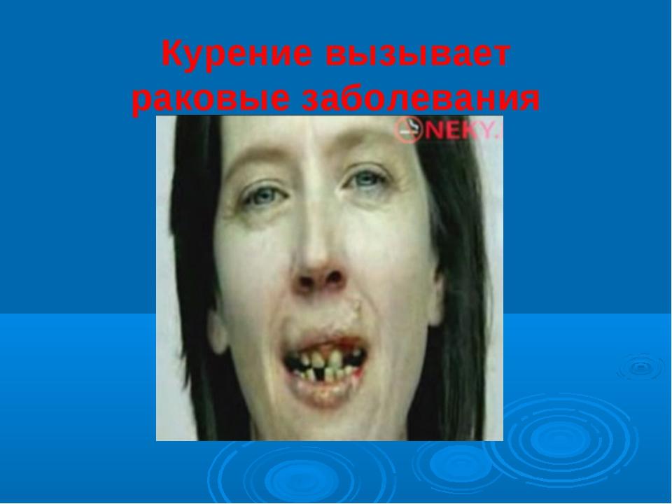 Курение вызывает раковые заболевания