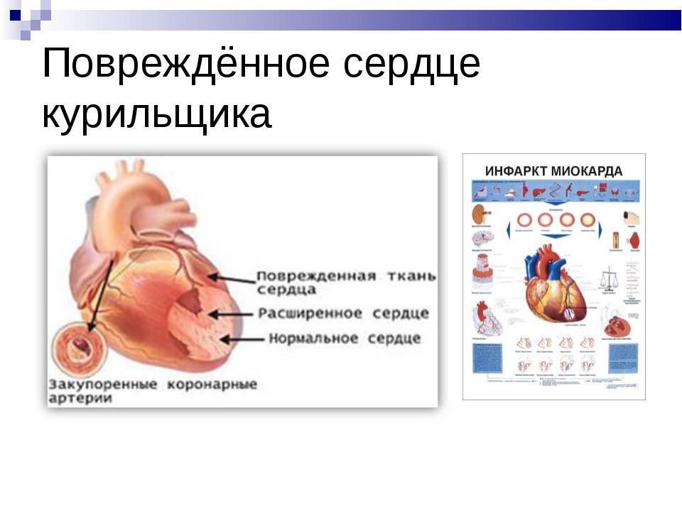 Повреждённое сердце курильщика