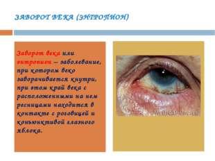 ЗАВОРОТ ВЕКА (ЭНТРОПИОН) Заворот века или энтропион – заболевание, при которо
