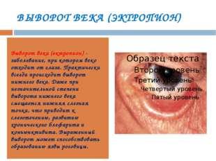 ВЫВОРОТ ВЕКА (ЭКТРОПИОН) Выворот века (эктропион)- заболевание, при котором