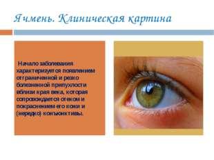 Ячмень. Клиническая картина Начало заболевания характеризуется появлением отг