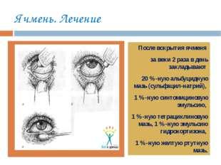 Ячмень. Лечение тт После вскрытия ячменя за веки 2 раза в день закладывают 20