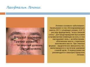Лагофтальм. Лечение. Лечение основного заболевания. Закапывание в глаз обезза
