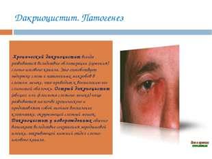 Дакриоцистит. Патогенез Хронический дакриоциститвсегда развивается вследстви