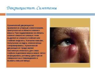 Дакриоцистит. Симптомы Хронический дакриоцистит проявляется упорным слезотече
