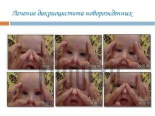 Лечение дакриоцистита новорожденных