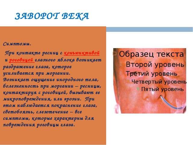 ЗАВОРОТ ВЕКА Симптомы. При контакте ресниц сконъюнктивойироговицей глазног...