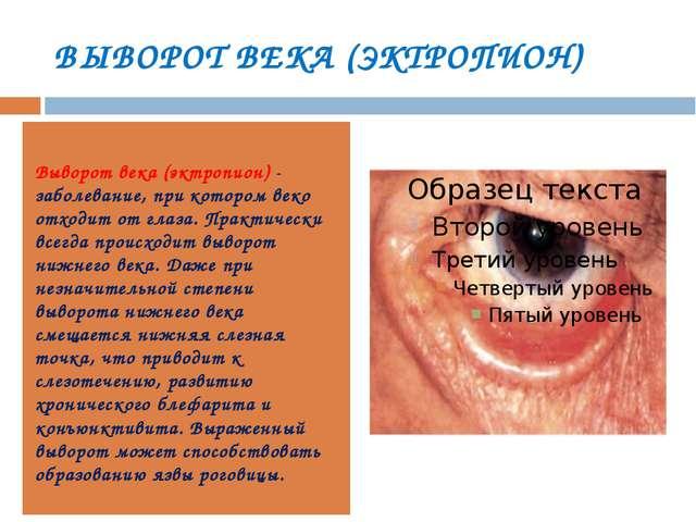 ВЫВОРОТ ВЕКА (ЭКТРОПИОН) Выворот века (эктропион)- заболевание, при котором...