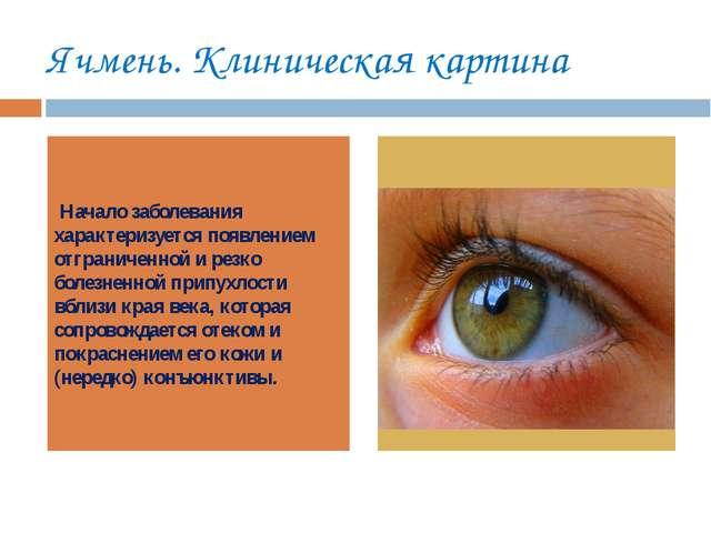 Ячмень. Клиническая картина Начало заболевания характеризуется появлением отг...