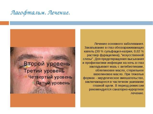 Лагофтальм. Лечение. Лечение основного заболевания. Закапывание в глаз обезза...
