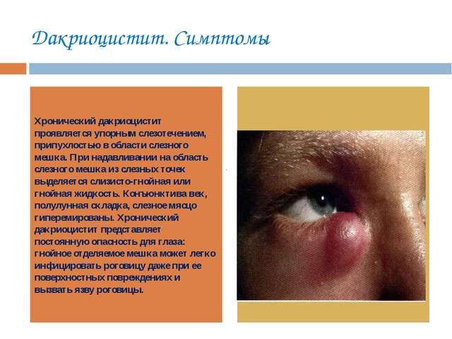 Дакриоцистит. Симптомы Хронический дакриоцистит проявляется упорным слезотече...