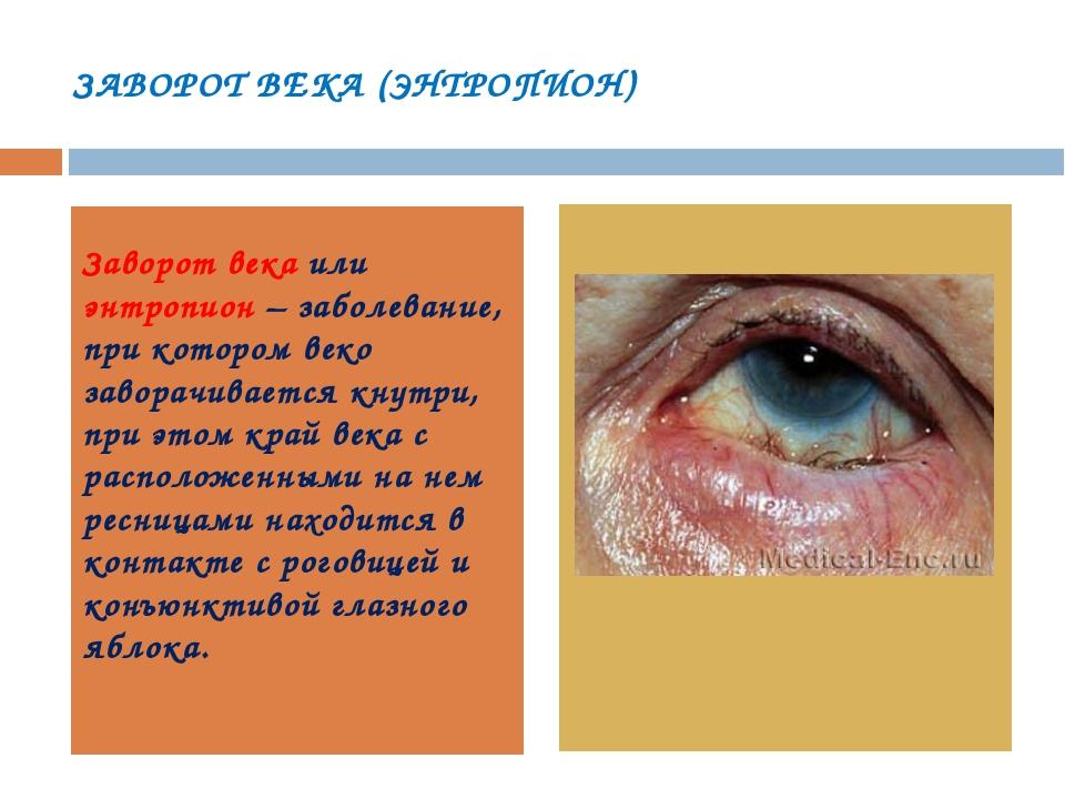 ЗАВОРОТ ВЕКА (ЭНТРОПИОН) Заворот века или энтропион – заболевание, при которо...