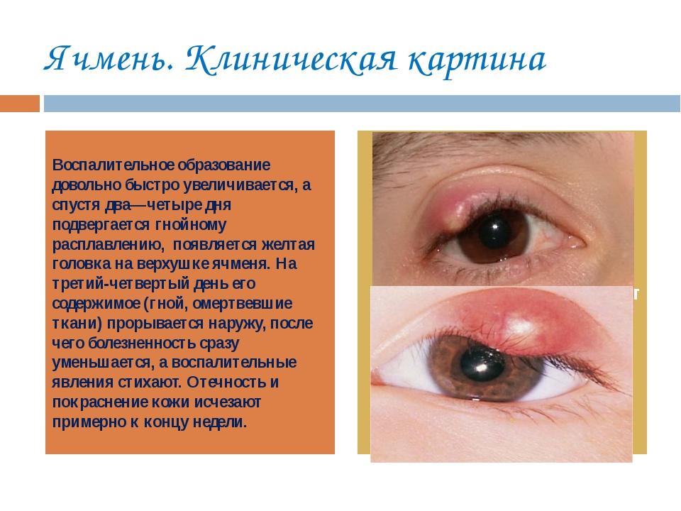 Ячмень на глазу беременной лечение 74