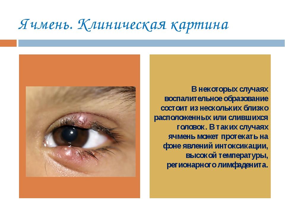 Ячмень. Клиническая картина рр В некоторых случаях воспалительное образование...