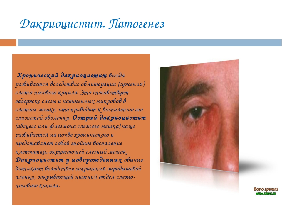 Дакриоцистит. Патогенез Хронический дакриоциститвсегда развивается вследстви...