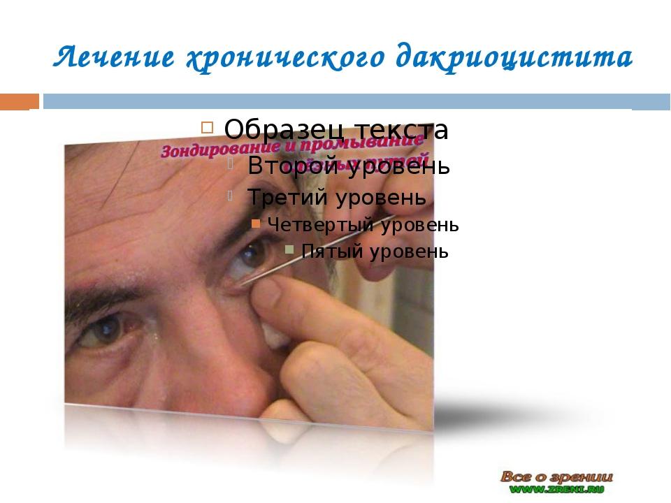 Лечение хронического дакриоцистита