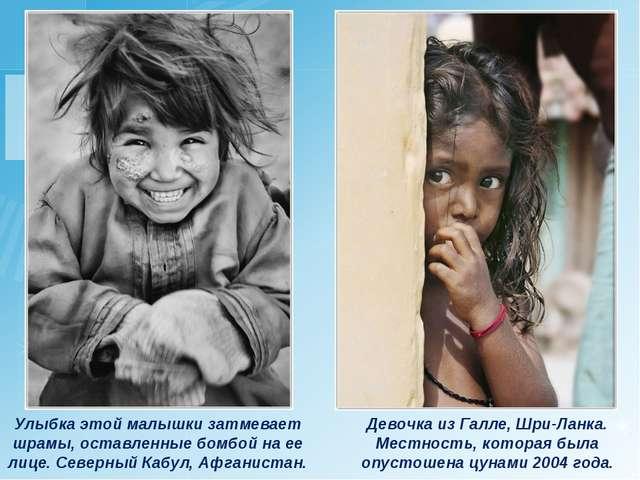 Улыбка этой малышки затмевает шрамы, оставленные бомбой на ее лице. Северный...