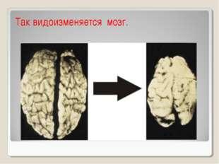 Так видоизменяется мозг.