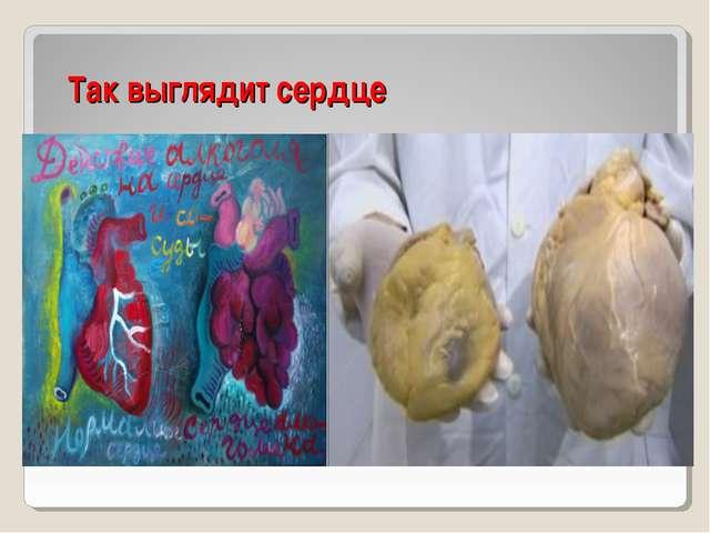 Так выглядит сердце