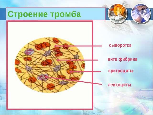Строение тромба нити фибрина эритроциты лейкоциты сыворотка