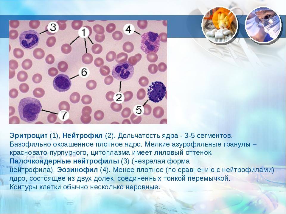 Эритроцит (1), Нейтрофил (2). Дольчатость ядра - 3-5 сегментов. Базофильно ок...