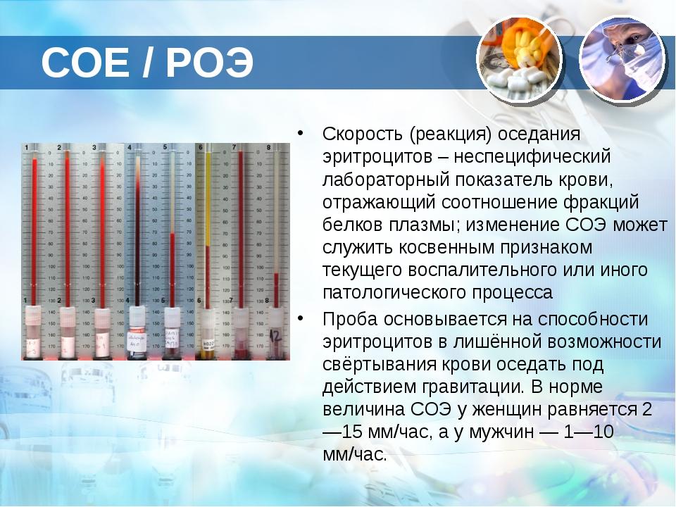 СОЕ / РОЭ Скорость (реакция) оседания эритроцитов – неспецифический лаборатор...