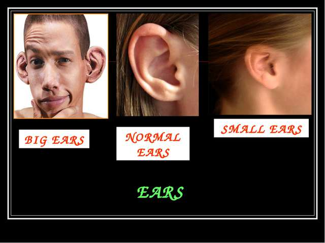 EARS BIG EARS SMALL EARS NORMAL EARS