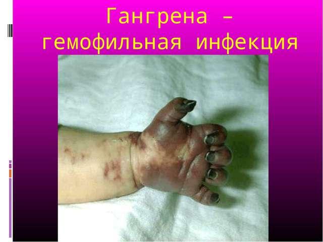 Гангрена – гемофильная инфекция