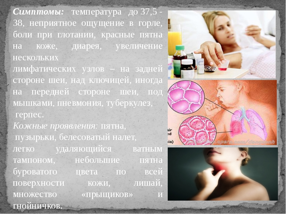 Симптомы: температура до37,5- 38, неприятное ощущение в горле, боли при гло...
