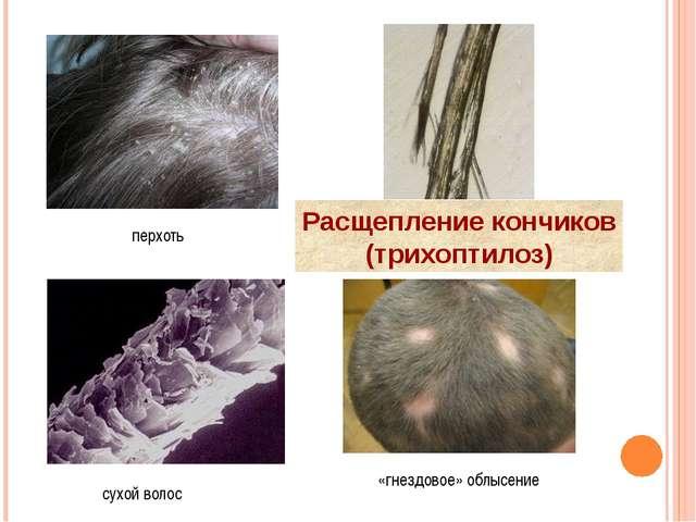 перхоть сухой волос «гнездовое» облысение Расщепление кончиков (трихоптилоз)