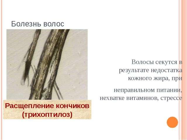 Болезнь волос Волосы секутся в результате недостатка кожного жира, при неправ...