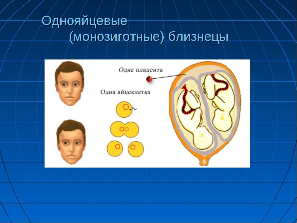 Однояйцевые (монозиготные) близнецы