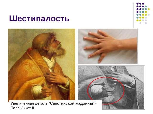 """Шестипалость Увеличенная деталь """"Сикстинской мадонны"""" - Папа Сикст II."""