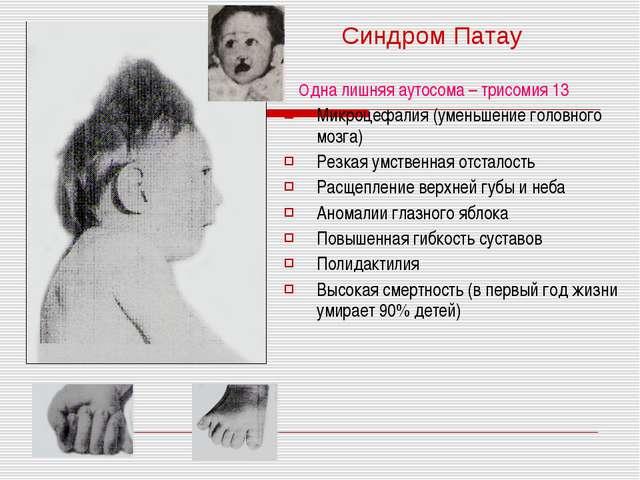 Одна лишняя аутосома – трисомия 13 Микроцефалия (уменьшение головного мозга)...