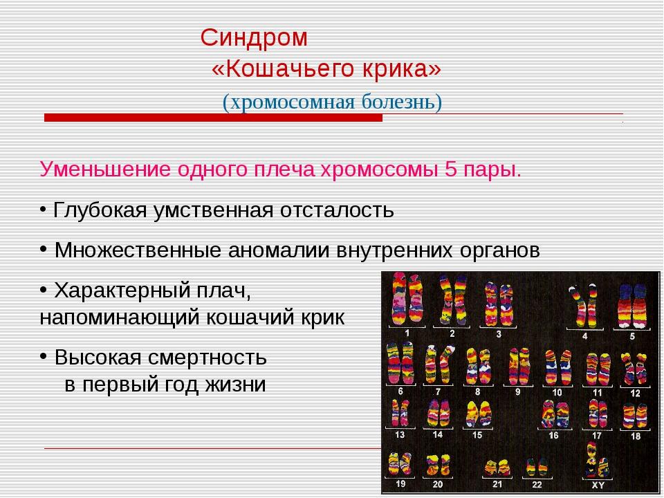 Синдром «Кошачьего крика» Уменьшение одного плеча хромосомы 5 пары. Глубокая...