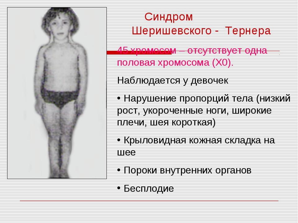 Синдром Шеришевского - Тернера 45 хромосом – отсутствует одна половая хромосо...