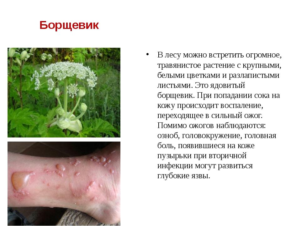 Борщевик В лесу можно встретить огромное, травянистое растение с крупными, б...