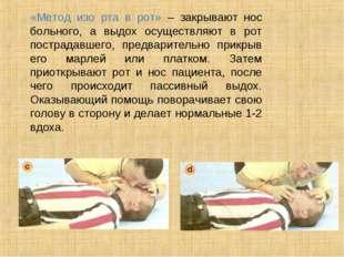 «Метод изо рта в рот» – закрывают нос больного, а выдох осуществляют в рот п