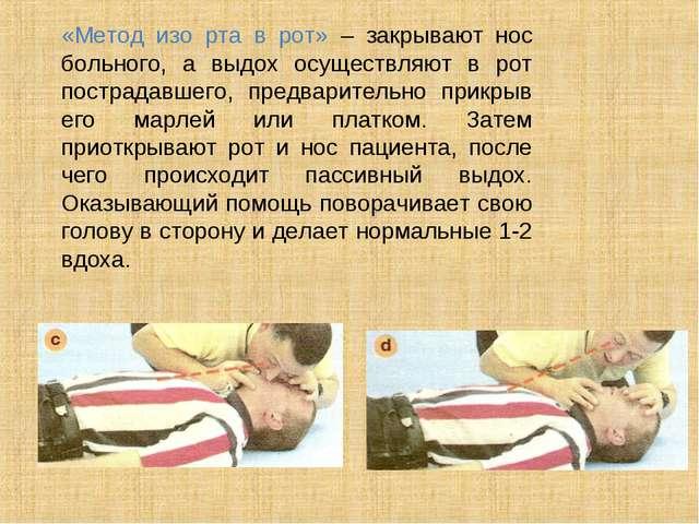 «Метод изо рта в рот» – закрывают нос больного, а выдох осуществляют в рот п...