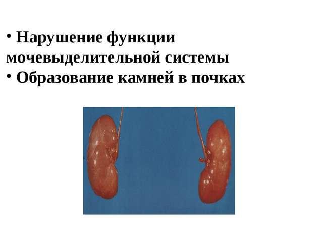 Нарушение функции мочевыделительной системы Образование камней в почках