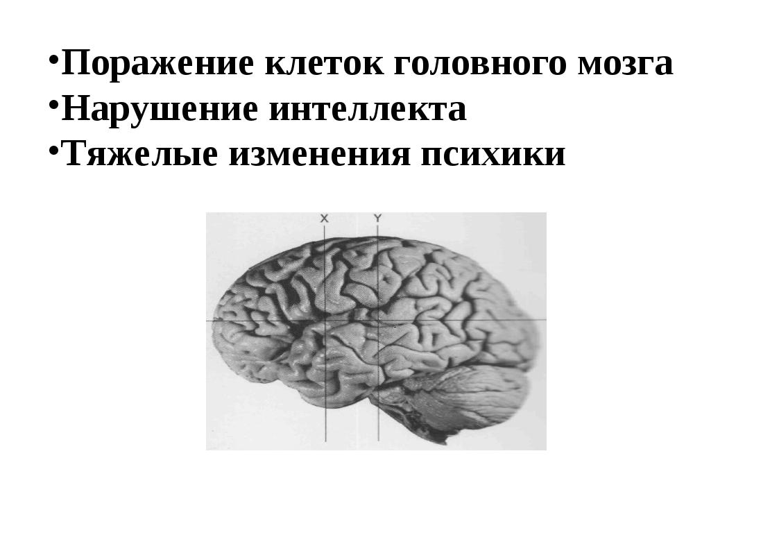 Поражение клеток головного мозга Нарушение интеллекта Тяжелые изменения психи...