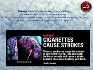 Канада. Сигареты вызывают кровоизлияние. Курение может засорить артерии вашег