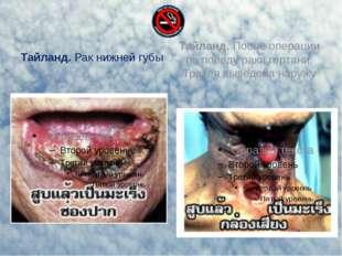 Тайланд. Рак нижней губы Тайланд. После операции по поводу рака гортани. Трах