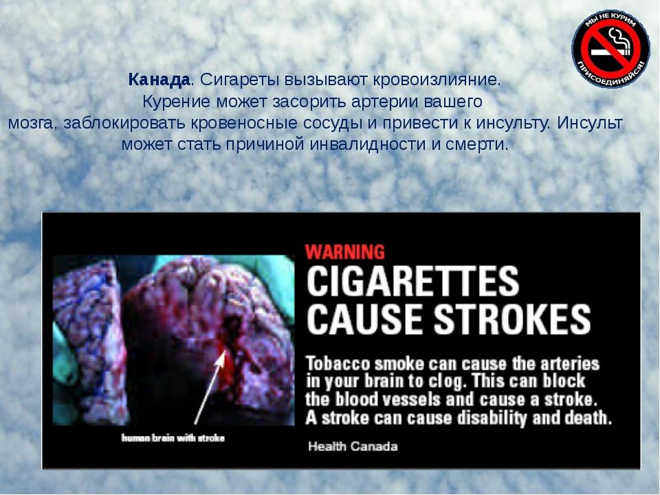 Канада. Сигареты вызывают кровоизлияние. Курение может засорить артерии вашег...