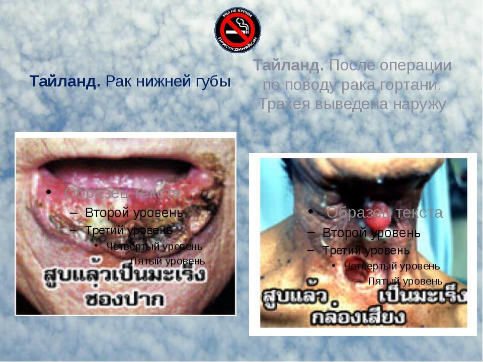 Тайланд. Рак нижней губы Тайланд. После операции по поводу рака гортани. Трах...