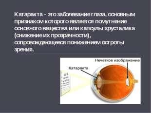 Катаракта - это заболевание глаза, основным признаком которого является помут