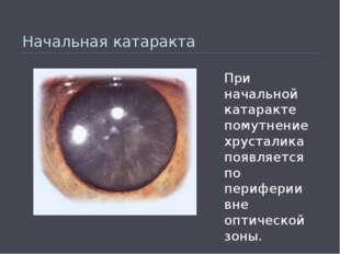 Начальная катаракта При начальной катаракте помутнение хрусталика появляется